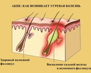 How to prevent acne foto