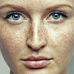 How to get rid of freckles – all you haνe to know if you want your skin to be gorgeously white