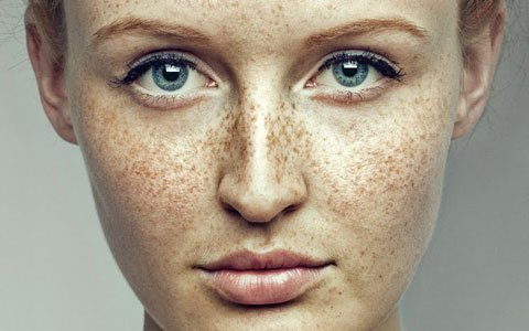 How To Get Rid Of Freckles All You Ha E To Know If You