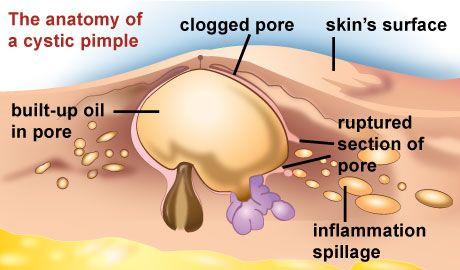 oily skin symptoms