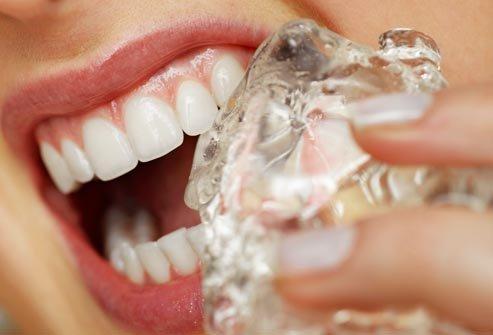 ice for teeth