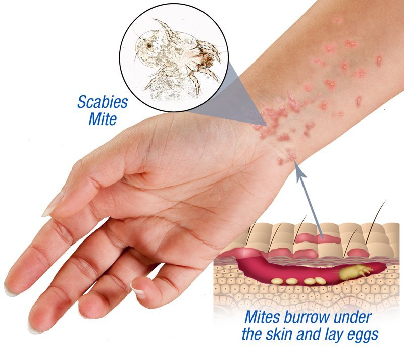 Scabies Bites: Pictures, Symptoms, and Treatments