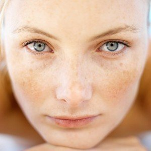 skin with pigmentation