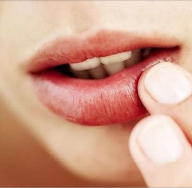 Six simple methods how to get rid of a cold sore at home ccuart Choice Image