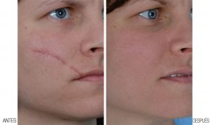 scars removal
